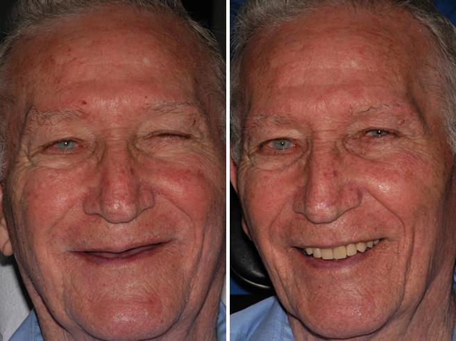 Implantes Dentales All-on-4 ® Fotos de Antes y Después en Miami, Florida, Paciente 65