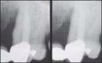 defecto de profundo infra-tono en la medial de los caninos maxilares desgarrados.