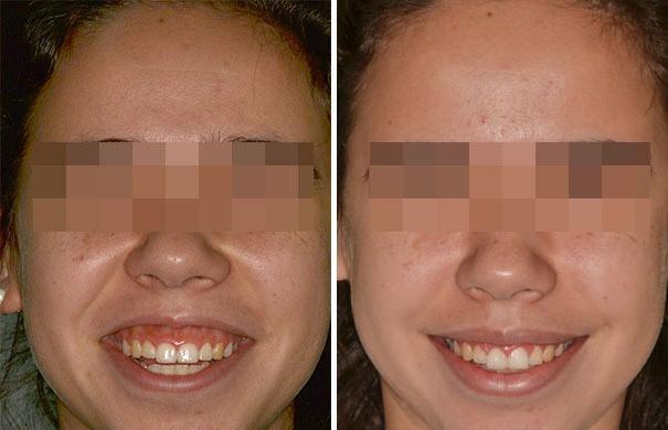 Corrección de Sonrisa Gingival Fotos de Antes y Después en Miami, Florida, Paciente 169